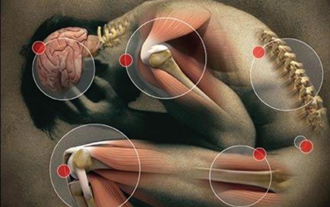 Dolore, la cronicità rischia di diventare una malattia vera e propria. Servono terapie adatte