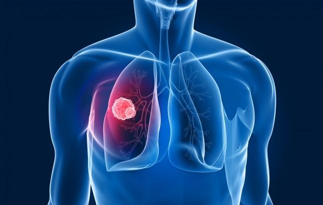 Via libera Ce per afatinib nel carcinoma polmonare a cellule squamose