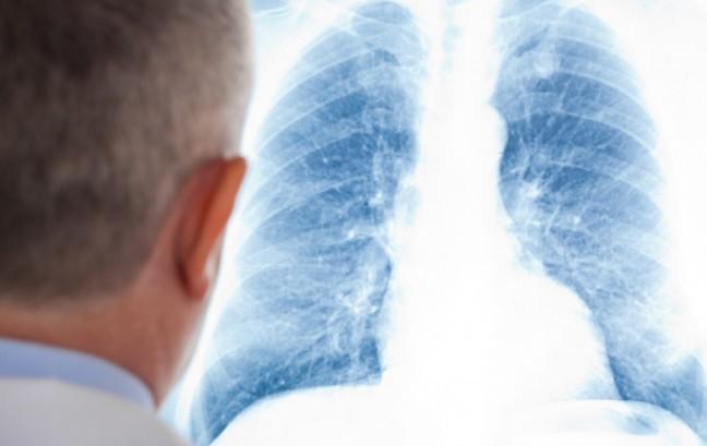 Boehringer, via libera dal Chmp a terapia per pazienti affetti da malattia interstiziale polmonare