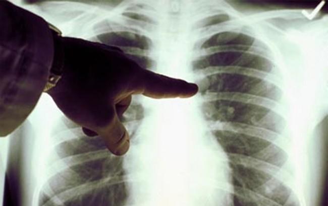 Cancro al polmone, nasce la Lung ambition alliance