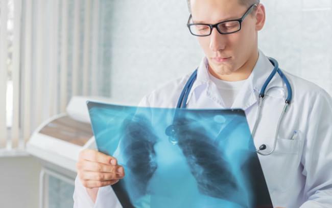Malattie croniche, uno strumento di prevenzione per le riacutizzazioni in Bpco