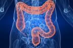 Malattie infiammatorie croniche intestinali: nuove conferme per infliximab biosimilare