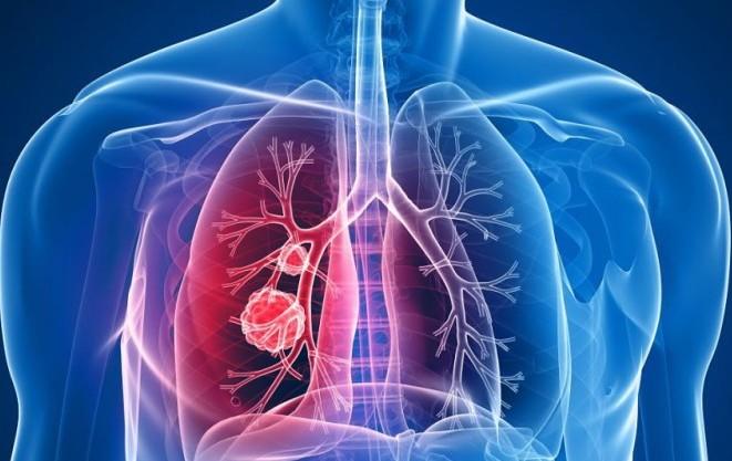 Cancro polmonare, studio su Lancet Oncology incoraggia l'immunoterapia d'avanguardia