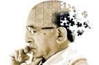 Alzheimer: Ema apre la consultazione sulla bozza delle nuove linee guida
