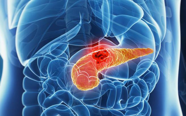 Carcinoma pancreatico: nuovi dati confermano nab-paclitaxel/gemcitabina come terapia backbone