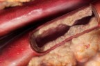 Alirocumab batte aferesi nella lotta all'ipercolesterolemia familiare