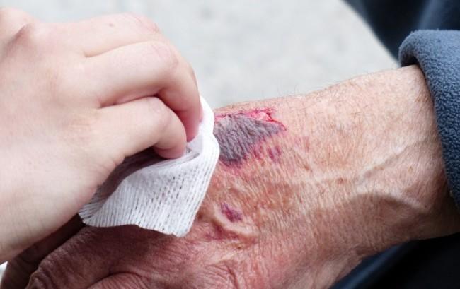 """Riparazione tissutale: al congresso CO.R.TE. riflettori accesi su """"epidemia"""" di infezioni"""