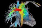 Malattie cardiache, ok di Fda a un software di intelligenza artificiale per l'acquisizione di immagini