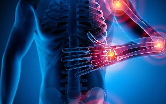 Nasce la prima società scientifica italiana dedicata a dolore muscolo-scheletrico e algodistrofia