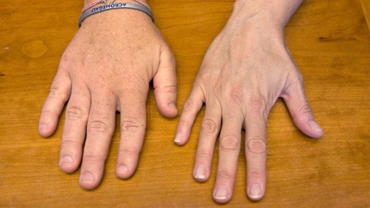 Malattie endocrine rare, pasireotide riceve l'indicazione per il trattamento dell'acromegalia