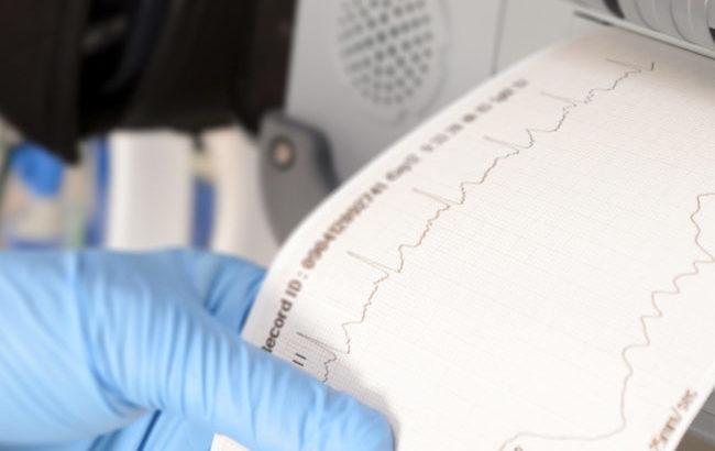 Ictus e fibrillazione atriale: senza anticoagulanti orali 230 milioni di mancati risparmi l'anno per il Ssn