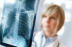 Malattie rare, online una guida ai centri dispensatori di farmaci per la fibrosi polmonare idiopatica