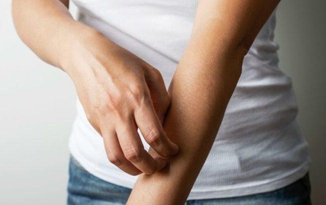 """Psoriasi, al via in Italia la campagna """"Chiedi al tuo dermatologo"""" di Novartis"""