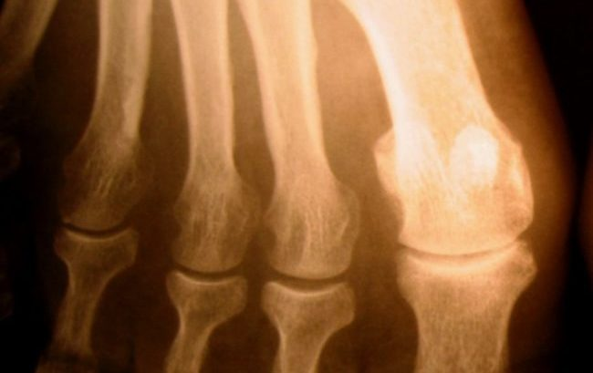 Osteoporosi severa, la Commissione Ue dà il via libera a romosozumab