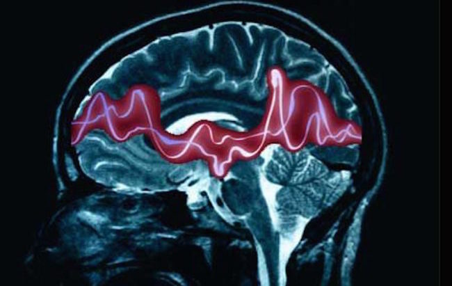 Marcatore precoce dell'epilessia individuato dai ricercatori del Mario Negri