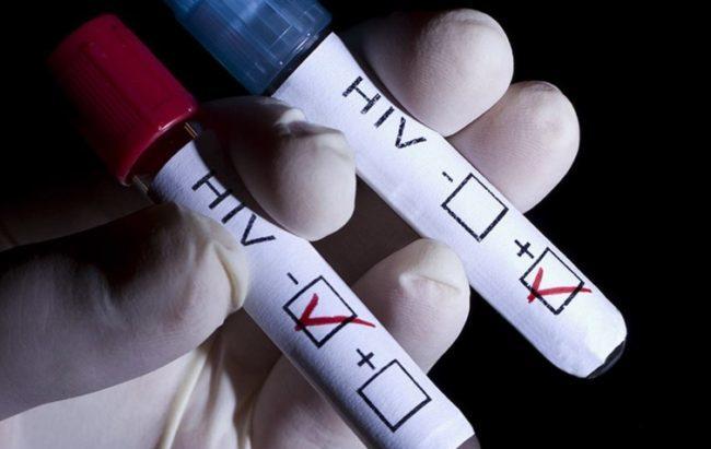 Un decimo dei bambini è in grado di difendersi dall'Aids
