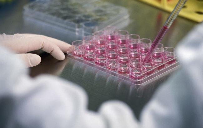Un'iniezione di staminali per riparare i danni dell'ictus