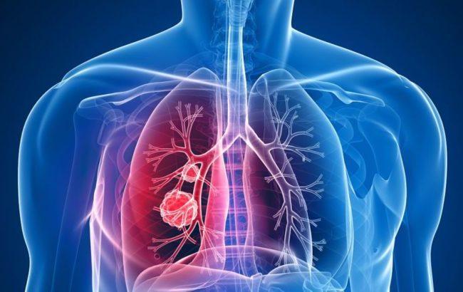 Il tumore polmonare mette in crisi anche i bilanci familiari