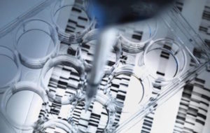 terapia genica contro il linfoma non-Hodgkin