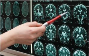 ricerca sull'Alzheimer e Snc
