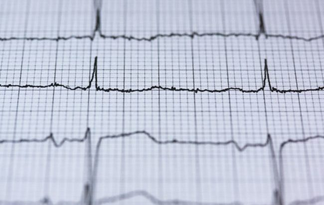 Dalle aziende medtech, un cuore digitale per testare le terapie