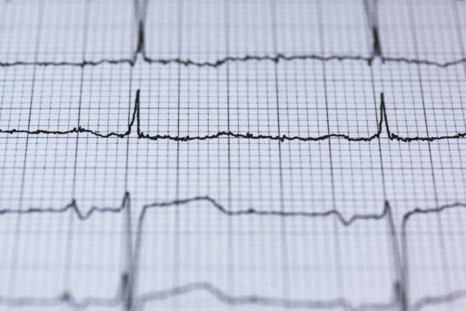 Dispositivi medici, Miracor Medical completa un round da 30 milioni di euro