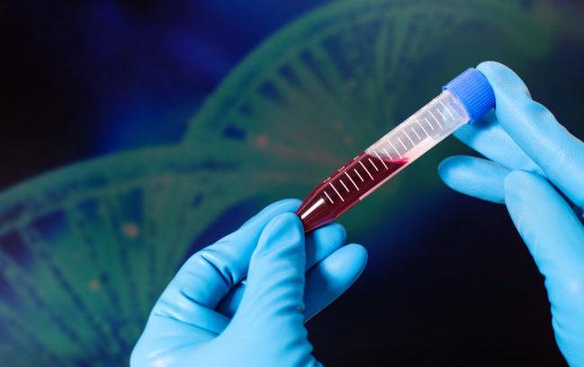Emofilia A, ok di Aifa alla rimborsabilità di un nuovo fattore VIII a emivita prolungata
