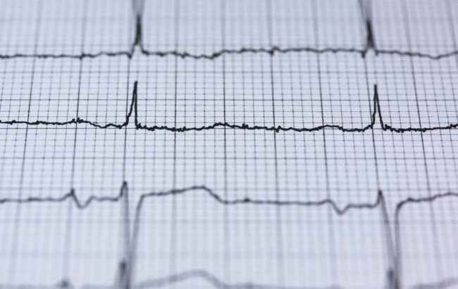 La cardioncologia per proteggere il cuore dalle cure antitumorali