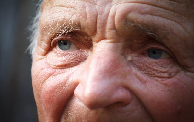 Una nuova speranza per la cura dell'Alzheimer (nonostante tutto)