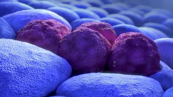 Leucemia linfatica cronica, via libera Aifa a rimborsabilità per venetoclax più rituximab
