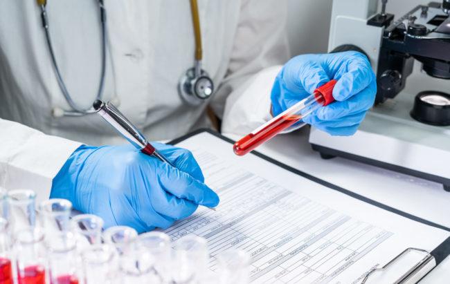 Test sierologici contro Covid-19, Diasorin riceve l'ok dalla Fda