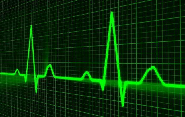 Dispositivi medici: cassa integrazione per il 45,8% delle imprese