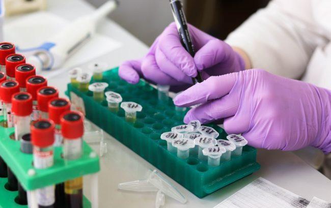 Immunoterapia: cemiplimab ottiene la rimborsabilità in Italia