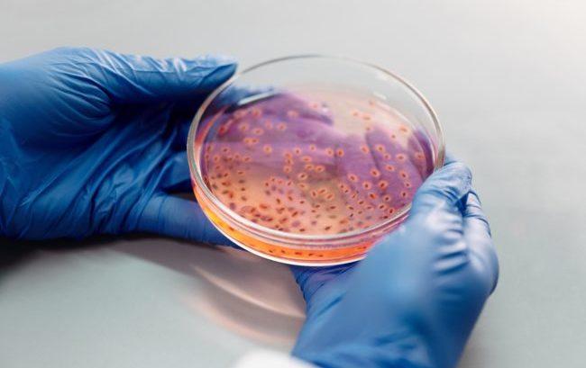 Antibiotico-resistenza, stilato un documento per il contrasto nel paziente fragile
