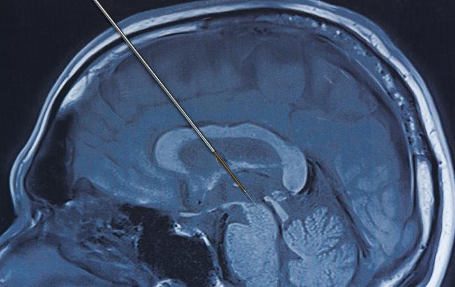 Dispositivi medici, la Fda approva l'uso di un sistema per la stimolazione cerebrale profonda