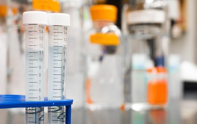 Analisi e diagnostica: Lifebrain acquisisce Nuovi laboratori srl