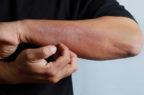 Dermatite atopica, la Commissione europea approva l'utilizzo di tralokinumab