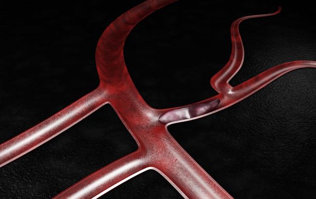 Tromboembolismo venoso, Fda approva dabigatran etexilato per il trattamento dei bambini