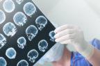 Gli ultrasuoni focalizzati permettono il passaggio dell'immunoterapia attraverso la barriera emato-encefalica